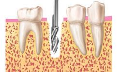 dentista madrid en implantes sin cirugía