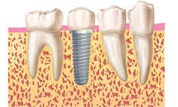 4.corona-provisonal-implante