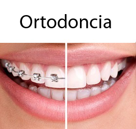 ortodoncia en clinica dental en Madrid INVISALIGN