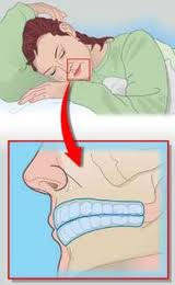 bruxismo-dental-ferula-nocturna_1