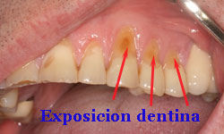 bruxismo-dental_8
