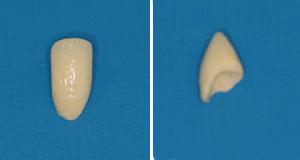 carillas-masquin-estetico-dental-1