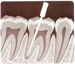 como-es-una-endodoncia-14