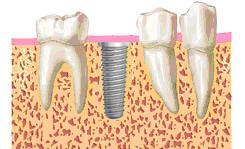 implantes dentales buenos en madrid centro