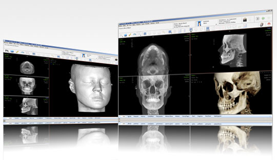 diagnostico_scaner_ortodoncia_3
