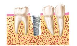 dientes-momento-implante-dental (6)