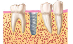 fases-implantes-dentales-clinica-madrid (3)