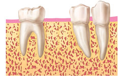 fases-implantes-dentales-clinica-madrid (5)