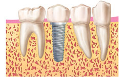 fases-implantes-dentales-clinica-madrid (6)