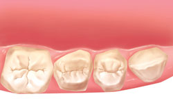 fases-implantes-dentales-clinica-madrid