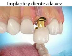 implantes-dentales-corona-inmediata