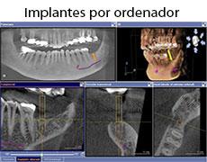 implantes-dentales-por-ordenador