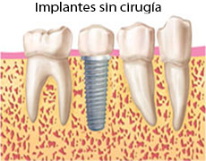 implantes-dentales-sin-cirugia