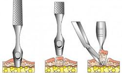 dentista madrid en implantes sin cirugia