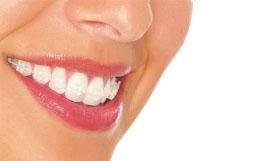 ortodoncia-braquets-esteticos-tecnicas-avanzadas-madrid