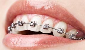 ortodoncia-braquets-metalicos-tecnicas-avanzadas-madrid