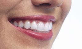 ortodoncia-tecnicas-avanzadas-madrid