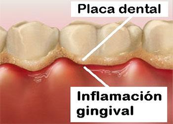 problemas-periodontales-inflamacion-encias