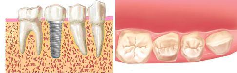 implantes dentales buenos en madrid