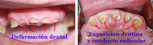 desgaste dientes naturales