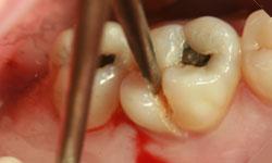 rotura dientes naturales