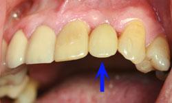 caso2-implantes-dientes-momento-corona-1