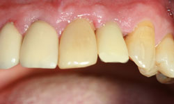 caso2-implantes-dientes-momento-corona-provisional-4