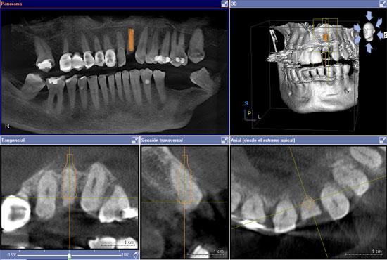 caso2-implantes-dientes-momento-escaner