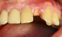 caso2-implantes-dientes-momento-extraccion-1