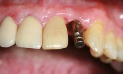 caso2-implantes-dientes-momento-impresiones
