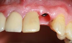 caso2-implantes-dientes-momento-remodelacion-encia-1