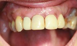 implantes-dientes-momento-corona-definitiva-1-caso1