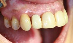 implantes-dientes-momento-corona-definitiva-caso1