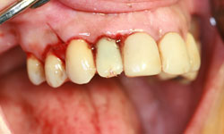 implantes-dientes-momento-corona-provisional-2-caso1