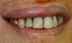 implantes-dientes-momento-corona-provisional-3-caso1