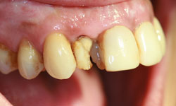 implantes-dientes-momento-extraccion-1-caso1