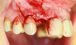 implantes-dientes-momento-extraccion-caso1