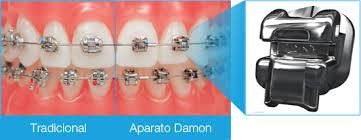 ortodoncia rapida metodo Damon Madrid
