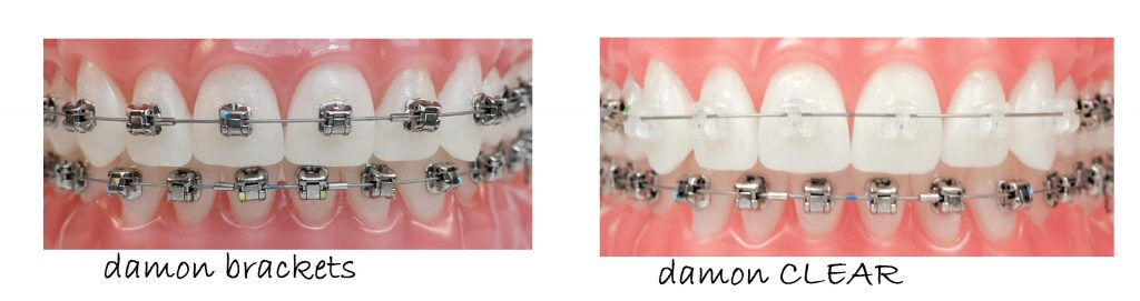 damon-braces-royal-palm-beach