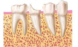 1.diente-para-extraer