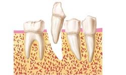 2.extraccion-diente