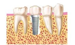 3.colocacion-implante-en--el-momento