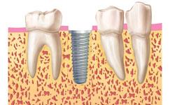 4.colocacion-implante