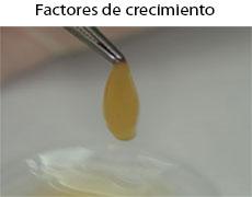 factores-crecimiento-implantes-dentales