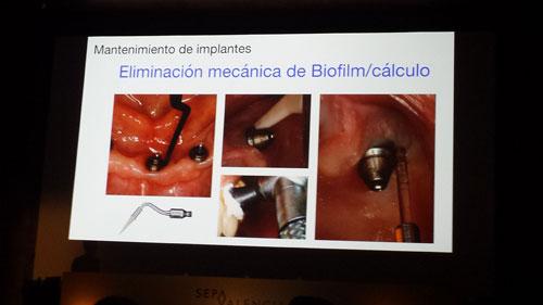 sepa-valencia-higiene-2016-2