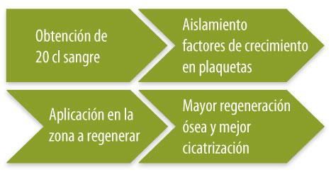 factores-crecimiento-implantes-dentales-esquema