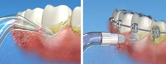 irrigadores-bucales-clinica-dental-velazquez-2