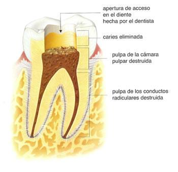 como-es-una-endodoncia-2