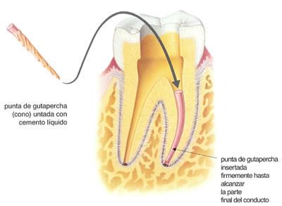 como-es-una-endodoncia-3