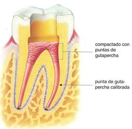 como-es-una-endodoncia-5